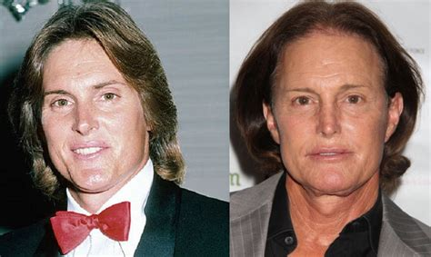 The Ever-Changing Face of Bruce Jenner Throughout the Years